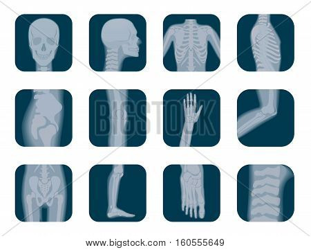 Vector realistic X-ray skeleton icons set. Human Skeleton xray elements. Body parts icon