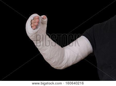 Young Man Wearing A Long Arm Plaster / Fiberglass Cast