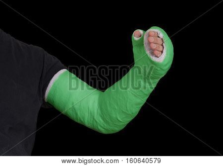 Green Long Arm Plaster Fiberglass Cast