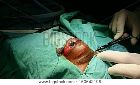 Rhabdomyosarcoma. Malignant ocular tumor. Eye surgery, preparation of the surgical field