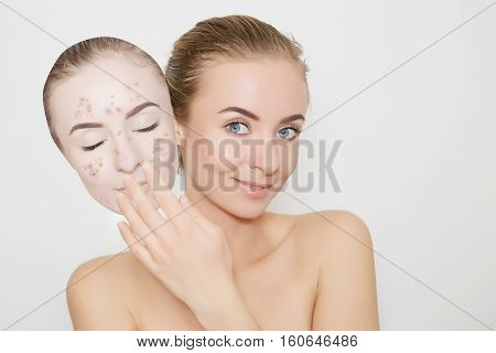 put away bad skin with pimples portrait