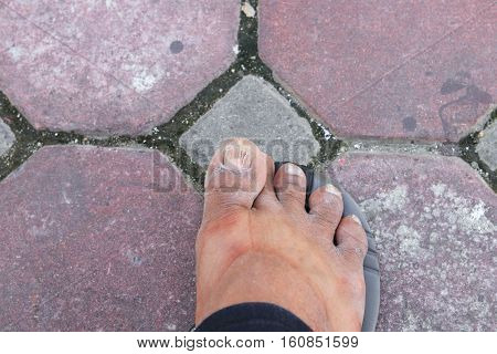 ingrown nail Big toe selective focus broken toenail on floor with copy space