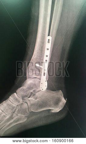 На прицельной рентгенограмме правого  голеностопного сустава, выполненной в боковой проекции, определяется перелом латеральной лодыжки, остеосинтез пластиной и винтами.
