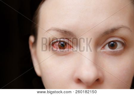 Close Up Of One Annoyed Red Blood And Health Eye Of Female Affected By Conjunctivitis Or After Flu,