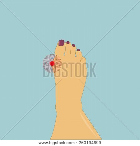 Hallux Valgus Foot With A Painful Bunion On The Green Background