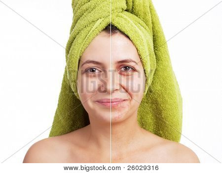 Woman with spotty skin with deep pores and blackhead and healed soft skin