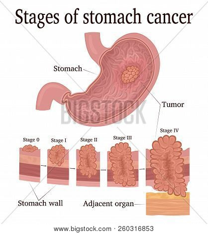 Stages Of Development Of A Malignant Tumor - Cancer Of The Stomach