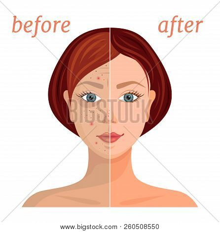 Illustration On The Theme Of Skin Care. Comparison Of Problem And Healthy Skin. Vector.