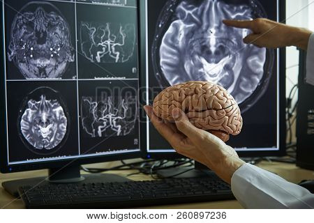 Human Brain Model On Doctor Hand. Doctor Pointing Mri Brain Demonstrate Brain Anatomy