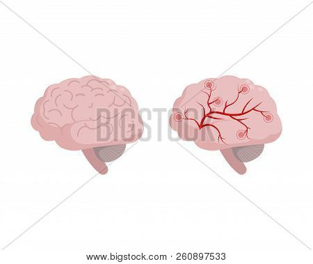 Healthy Brain Icon Isolated On White Background, Medical Illustration In Flat Design. Cerebral Circu