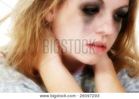 Teen girl in hospital gown over white background.