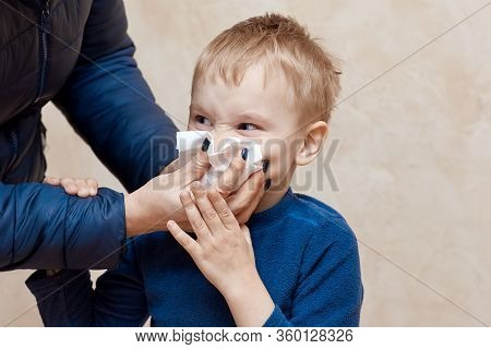 Little Blond Boy Sneezing Or Blowing His Nose With Mother Helping Hands. Wrinkled Nose, Squinted Eye