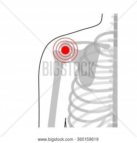 Human Shoulder Joint Pain Anatomy. Bones Diagram. Vector Flat Concept Illustration. Isolated On Whit