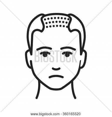 Man With A Bald Head Black Line Icon. Baldness Stage. Alopecia. Pictogram For Web Page, Mobile App,