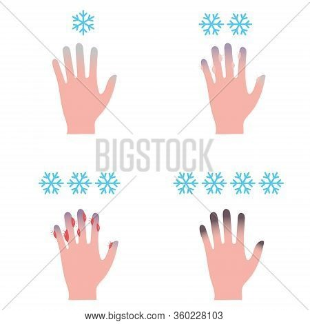 Frostbite Stages. Hypothermia In Cold Season. Medical Info Graphic Vector Illustration.