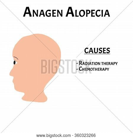 Alopecia Hair. Baldness Of Hair On The Head. Anagen Alopecia Causes. Infographics. Vector Illustrati
