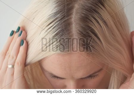 Closeup Of A Womans Blond Head With Parted Hair Regrown Roots. Haircare, Making New Hairdo, Hair The