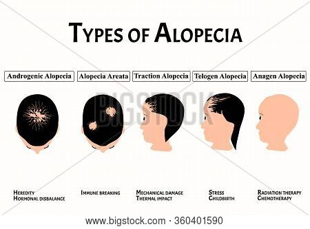 Types Of Alopecia. Bald Spot, Baldness, Alopecia Mesotherapy. Causes Of Baldness. Infographics. Vect