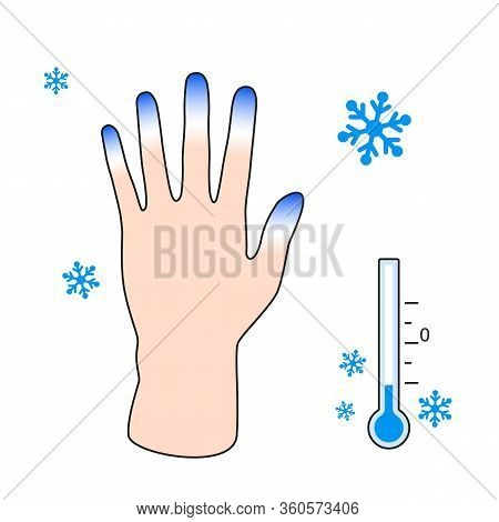 Frostbite. Hand With Frostbite Symptoms. Effect Of Cold On Human Fingers. Vector