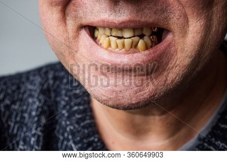 Smoker's man  yellow crooked teeth