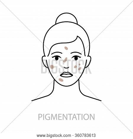 Skin Pigmentation Disorders Vector Icon Line Style