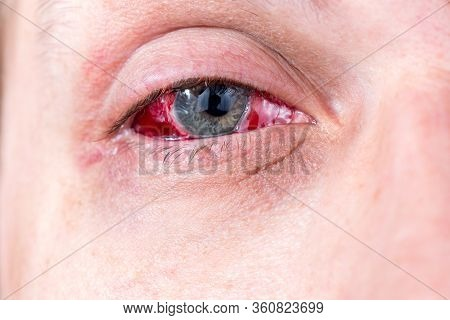 Postoperative Heavy Inflamed Eye Closeup Shot With Selective Focus