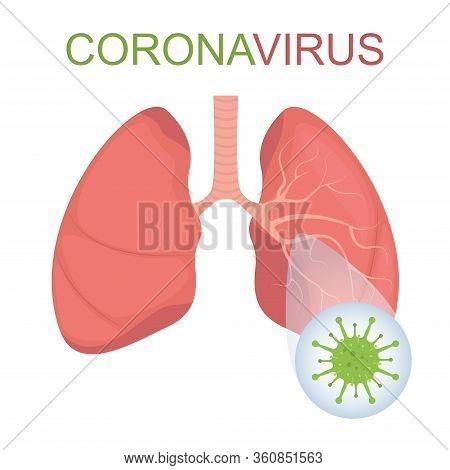 Coronavirus Causing Pneumonia Of The Lungs. Virus Causing Pneumonia. 2019-ncov Coronavirus Epidemic.