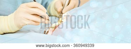 Eye Medical Treatment. Doctor Glove Hold Equipment. Woman Operate Mature Patient. Medicine Technolog