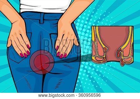 Pop Art Retro Comic Style Vector Illustration Of Human Body With Hemorrhoids