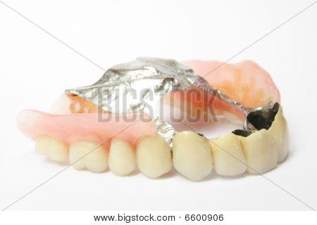 Dental Prosthesis, Dentures Porcelain