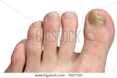 Toenail Fngus At Peak Infection