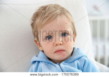 Little boy with red pimples at home. Chicken pox concept