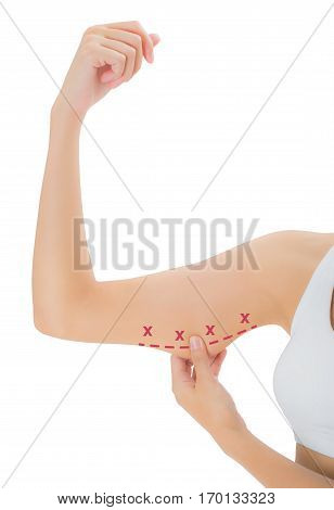 woman grabbing skin on her upper arm with the red color crosses marking Lose weight and liposuction cellulite removal concept Isolated on white background.