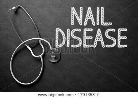 Medical Concept: Nail Disease - Medical Concept on Black Chalkboard. Black Chalkboard with Nail Disease - Medical Concept. 3D Rendering.