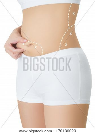 woman grabbing skin on her belly with the white color crosses marking Lose weight and liposuction cellulite removal concept Isolated on white background.