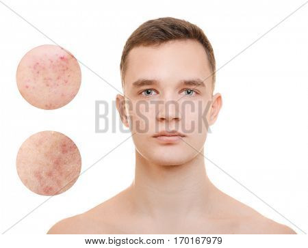 Acne and skin care concept. Young man before and after cosmetic procedure on white background