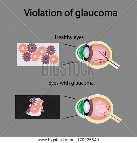 The structure of the eye. Blurred vision in glaucoma. As the eye can see the affected with glaucoma.