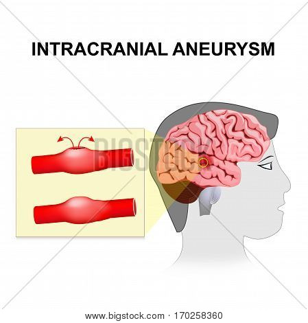 Intracranial aneurysm. cerebral or brain aneurysm. Rupture of a cerebral artery it results in the destruction of nerve cells as well as the formation of a hematoma.