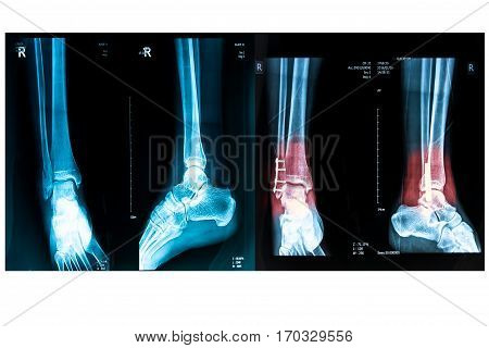 human foot right ankel xray picture with plate and screws