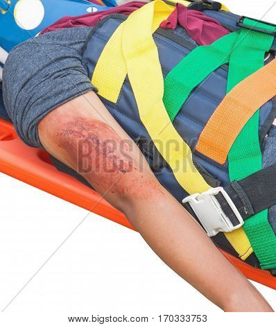 patient Injury upper arm in stretcher isolated on white background and clipping path