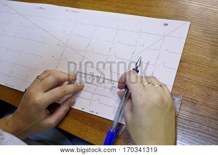 Doctor use ruler and pen for measure data on paper with electrocardiogram on table