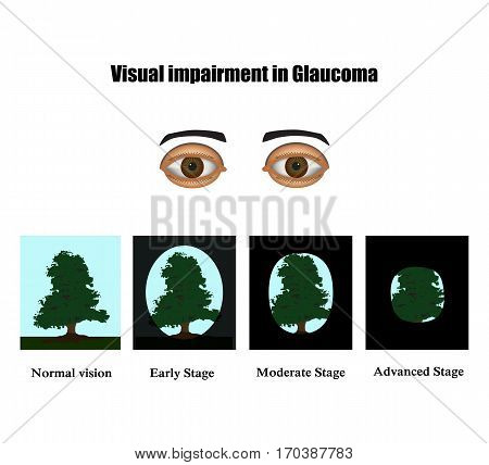 Glaucoma. The field of vision in glaucoma.  Infographics. Vector illustration on isolated background.