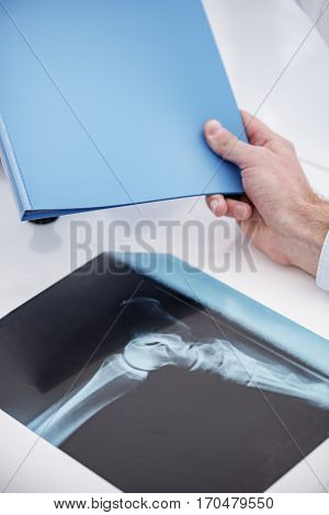 close up x-ray of foot of patient situating on table. Hand of doctor holding plastic paper-folder in his hand while leaning on table