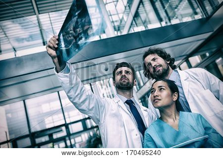 Doctors and nurse examining X-ray report in hospital