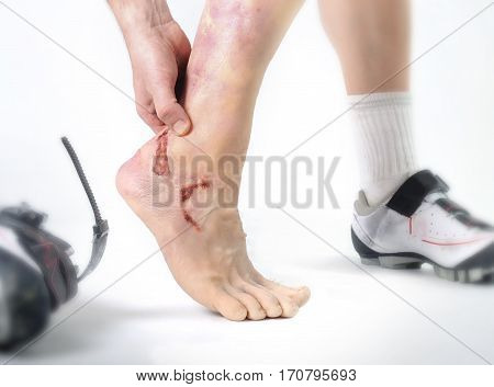close up hand and feet of young man holding wounded ankle after bike riding crash accident with injury bleeding isolated white background in cycling sport danger and risk
