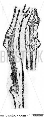 Longitudinal cutting apple branches with wounds due to canker, vintage engraved illustration.