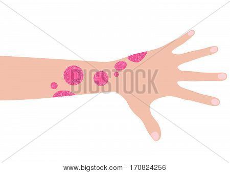 Human hand with psoriasis vector illustration. Illustration