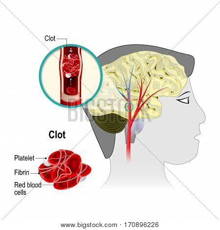 Cerebral infarction. brain stroke. the obstruction is caused by a blood clot that forms in a cerebral artery. Blood cells blocked of blood flow. Human anatomy.