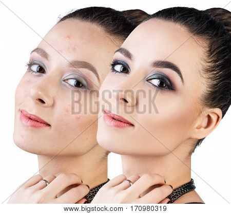 Comparison portrait of young woman with acne before and after make-up.