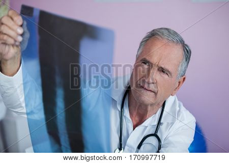 Physiotherapist examining x-ray of patient in clinic